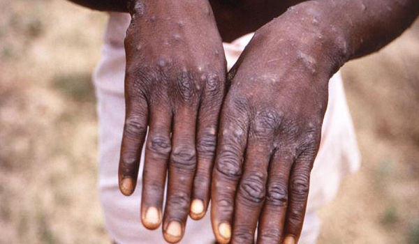 Monkeypox hit Abuja as FG confirms six fresh cases